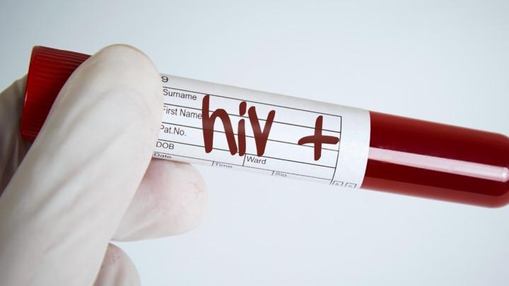 Онкологические проявления у ВИЧ инфицированнных Какие трудности ждут пациентов